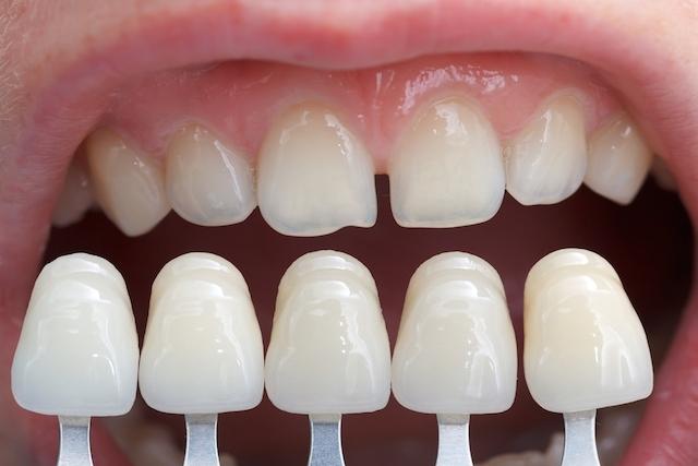 SORRIA BRASIL! Descubra como tratar seus dentes sem pagar nada!