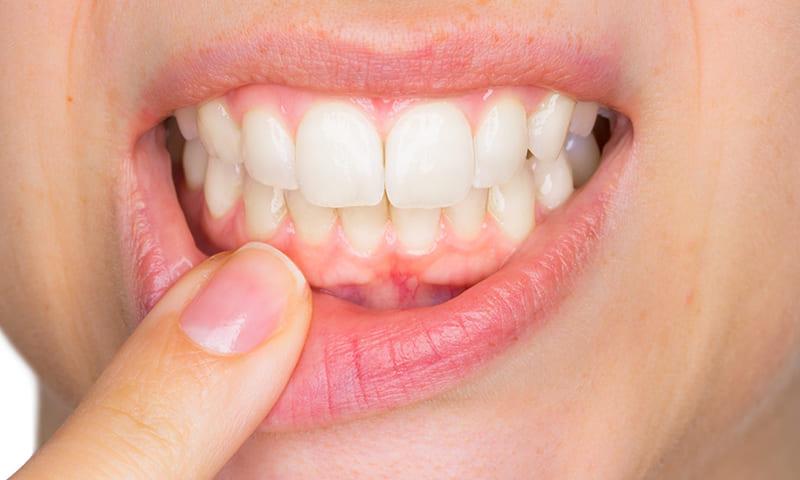 ¿Tratamientos Dentales sin costo? ¡Es posible!